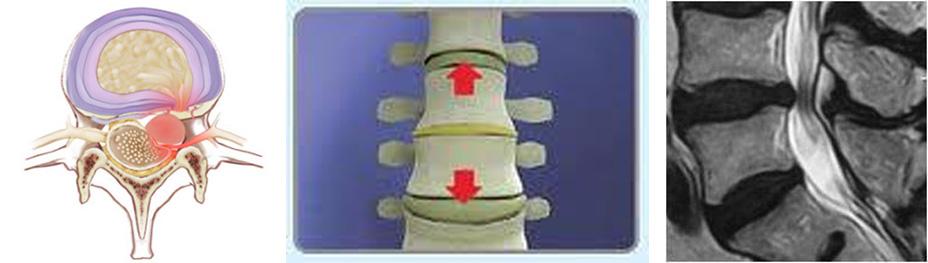 nueva imagen arthros columna